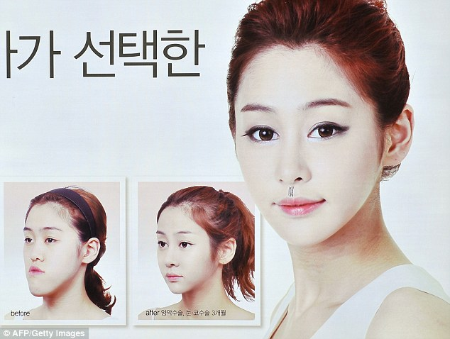 jaw cutting surgery in south korea